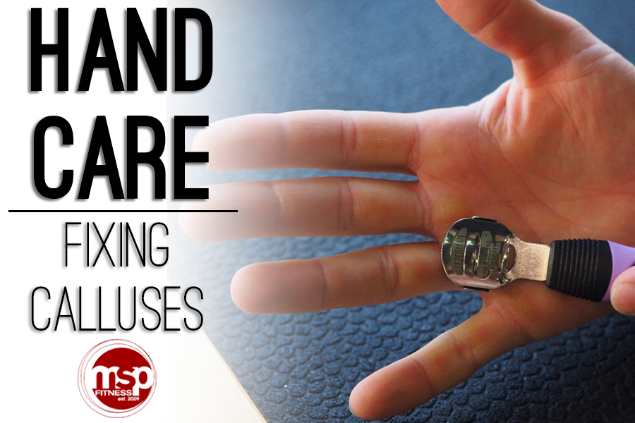 Fixing CALLUSES | Proper Hand Care for Weight Training and Weightlifting
